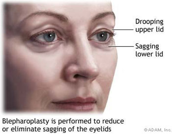 Blepharoplasty is performed to reduce or eleiminate sagging of the eyelids.