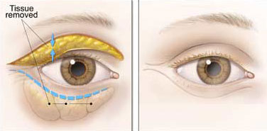 how a blepharoplasty is performed